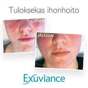 Exuviance aknehoito